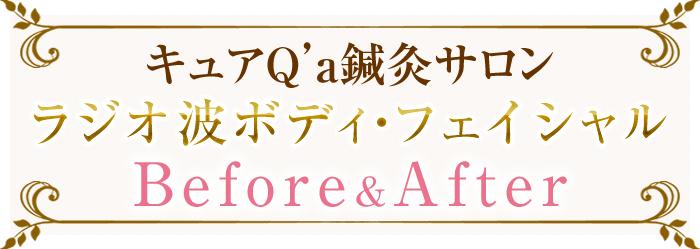 ラジオ波ボディ・フェイシャル before&after