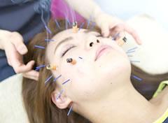 岡山市の美容鍼灸エステ キュアQ'a鍼灸サロンの美容鍼灸風景