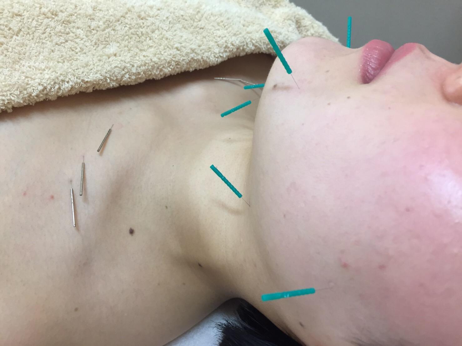 美容鍼灸,岡山市,南区,女性専門