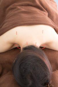 岡山市キュア鍼灸サロンの鍼で肩こり解消