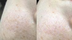 岡山市,そばかす,美容鍼灸,ヒト幹細胞