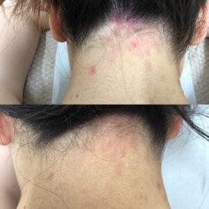 岡山市,頭皮湿疹,ヒト幹細胞