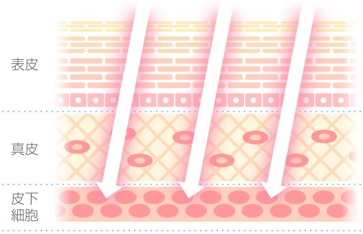岡山市キュアQ'a鍼灸サロンの美容鍼灸エステ イメージ図